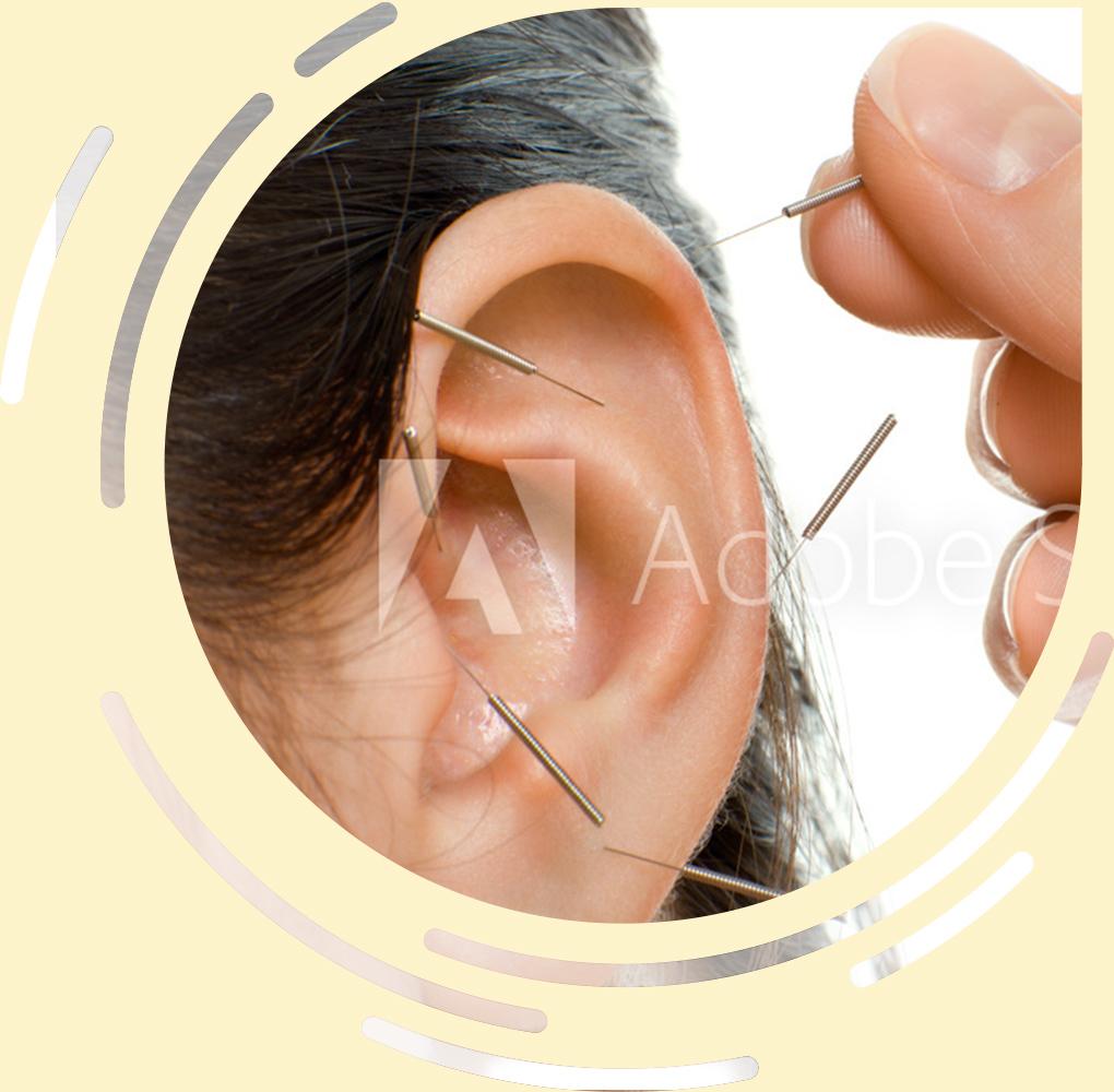 WCHM Auricular Ear Acupuncture